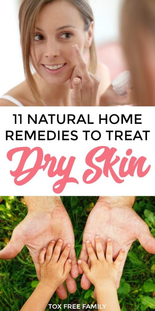 Natural Home Remedies to Treat Dry Skin in Winter